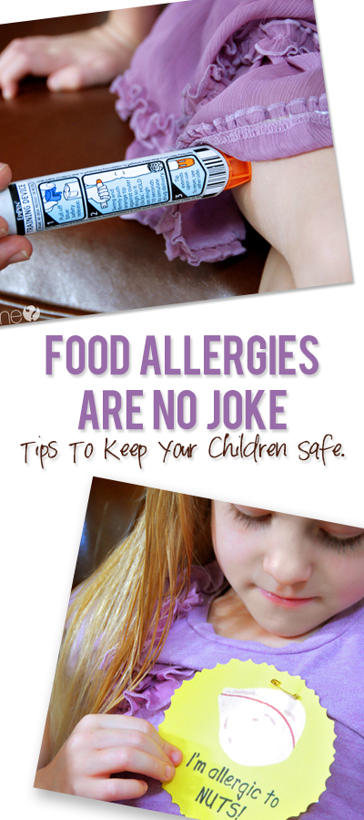 Food Allergies Are No Joke–Tips to keep your children safe