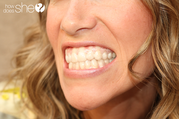 Kate teeth whiteneing (13)